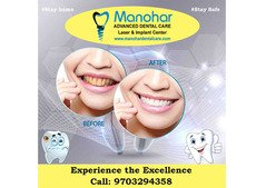 fractured teeth correction clinic in vizag |Manohar dental care